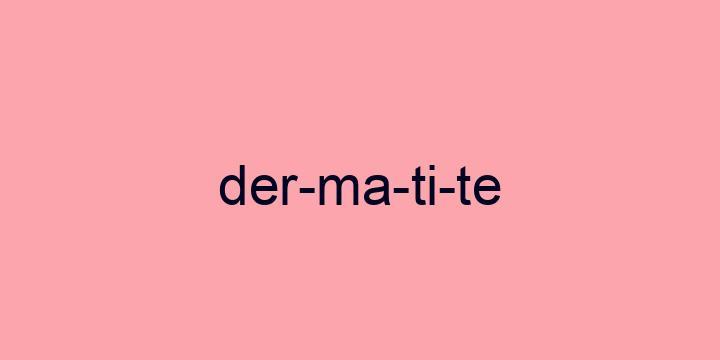 Separação silábica da palavra Dermatite: Der-ma-ti-te